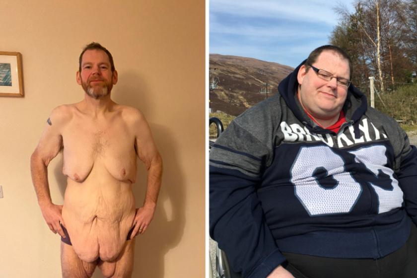 Paul Tuthill a beavatkozás után és előtt.