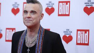 Robbie Williams rohamosan kopaszodik és nem igazán tud beletörődni ebbe