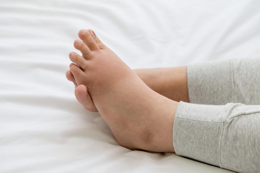 ödémás láb