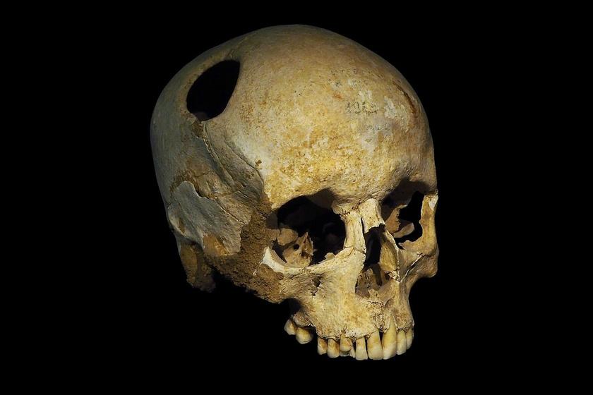 Miért fúrtak lyukat élő emberek koponyáján évezredeken keresztül? Rituálé vagy gyógymód is lehetett a tudósok szerint