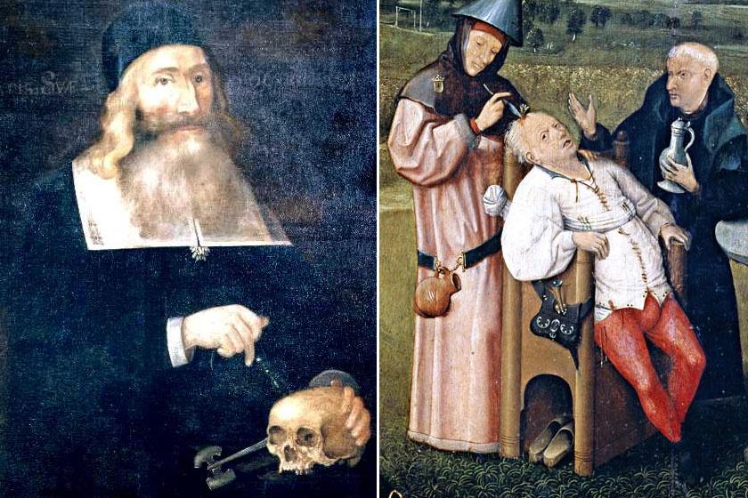 A beavatkozás 15-16., illetve 17. századi ábrázolása.