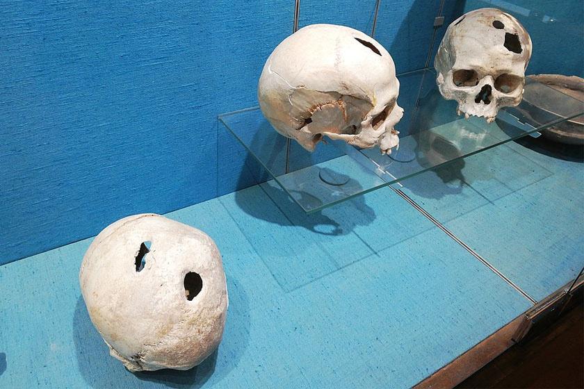 Lyukasztott koponyák a bronzkorból.