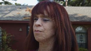 Szörnynek nevezik Ashleyt, akinek több ezer tumor borítja a testét