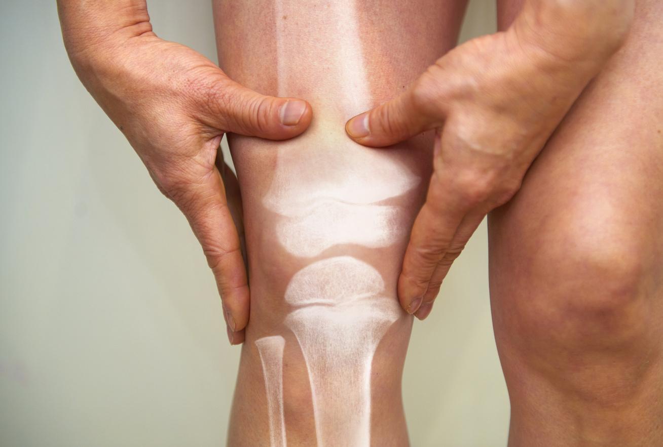 térd ízületi gyulladás porckopás rheumatoid artritisz