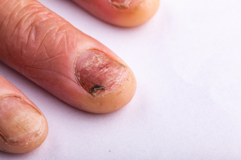 Onychomycosis körömgomba