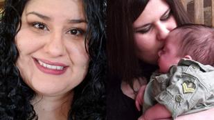 Ez a nő allergiás lett a saját bőrére, mégpedig a terhessége miatt