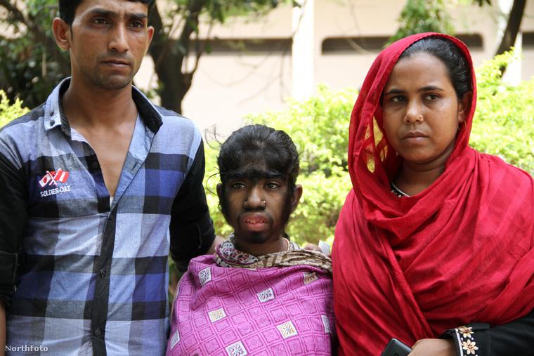 Apja, Abdur Razzar azt mondja, Bithi Aktar mellkasa és háta is szőrös