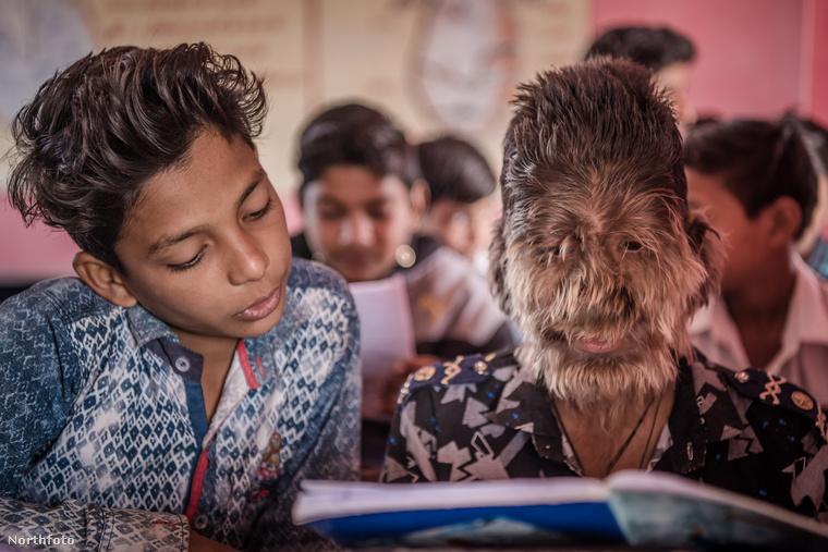 Lalit Patidar, aki az indiai Ratlam településen él, el tudja fogadni magát úgy, hogy szinte az egész testét szőr fedi