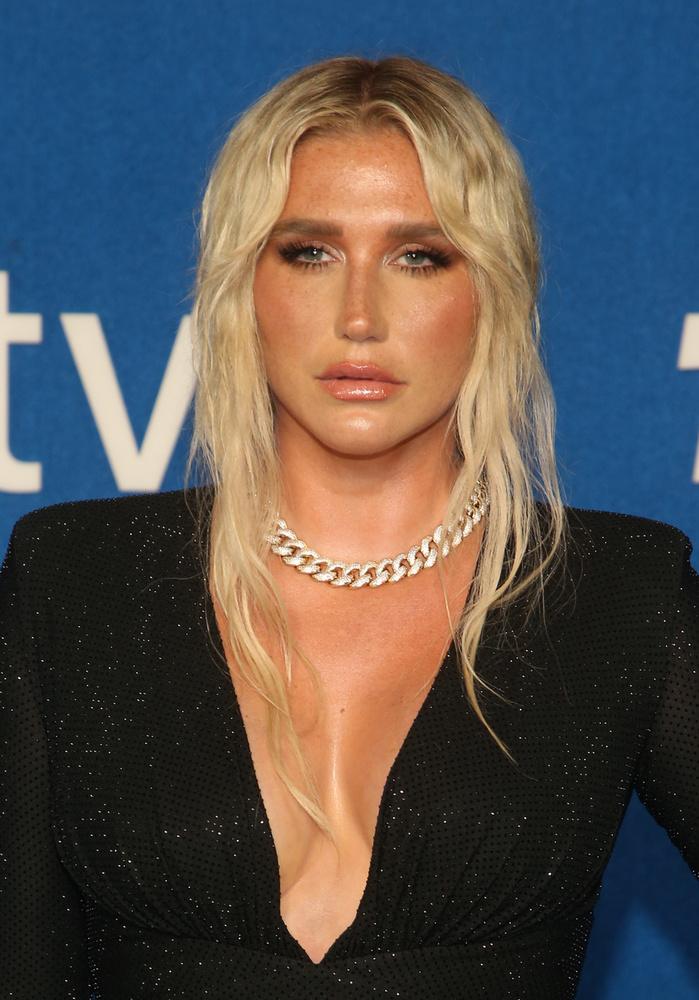 A bevállalósságáról is elhíresült énekesnő, Kesha korábban nem kertelt: kerek-perec kijelentette egy rádióműsorban, hogy büdösnek tartja magát