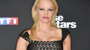Pamela Anderson 54 évesen újra szülne, pedig kockázatos