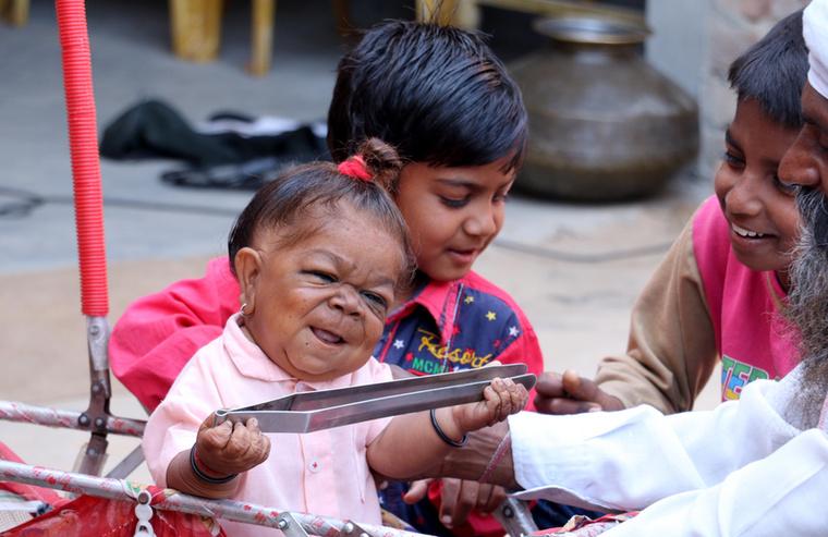 A kisbaba testében ragadt férfi nem tud gondoskodni magáról, szülei és testvérei gondoskodnak róla.