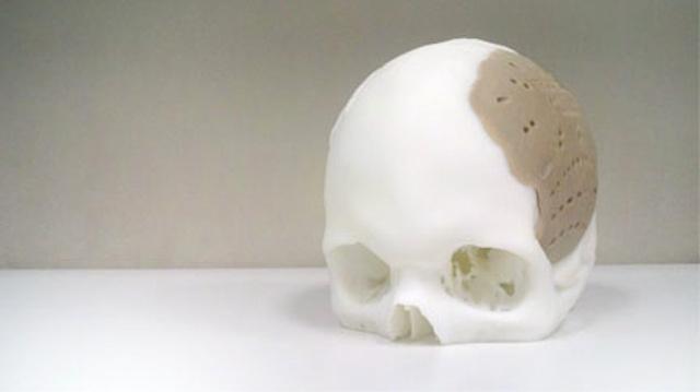 Osteofab-skull