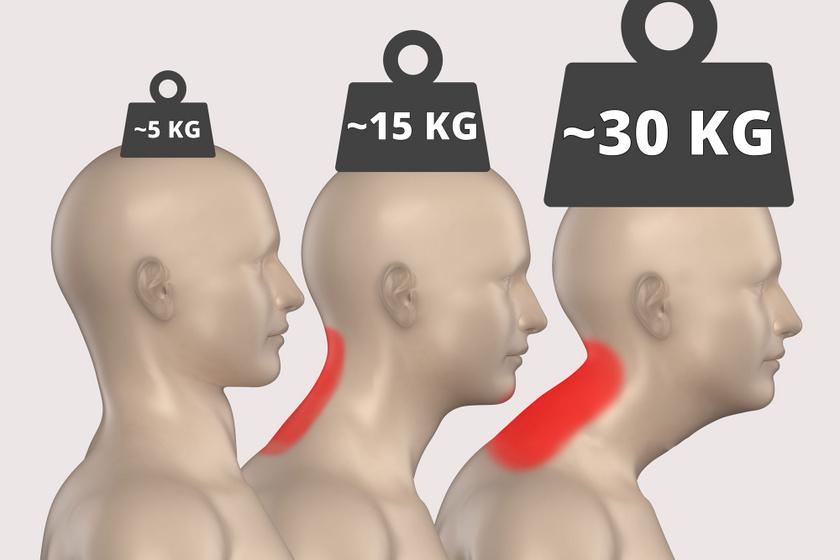 A fej 30 fokos előretolása megháromszorozza, 60 fokos előretolása meghatszorozza a gerincre eső terhelést.