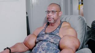 Ő az igazi Hulk: 71 centis bicepsze lett, mert olajjal injekciózta magát