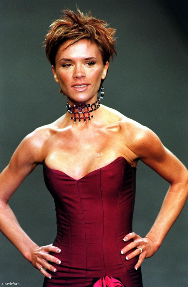 Victoria Beckham például nagyon megbánta a plasztikáztatást