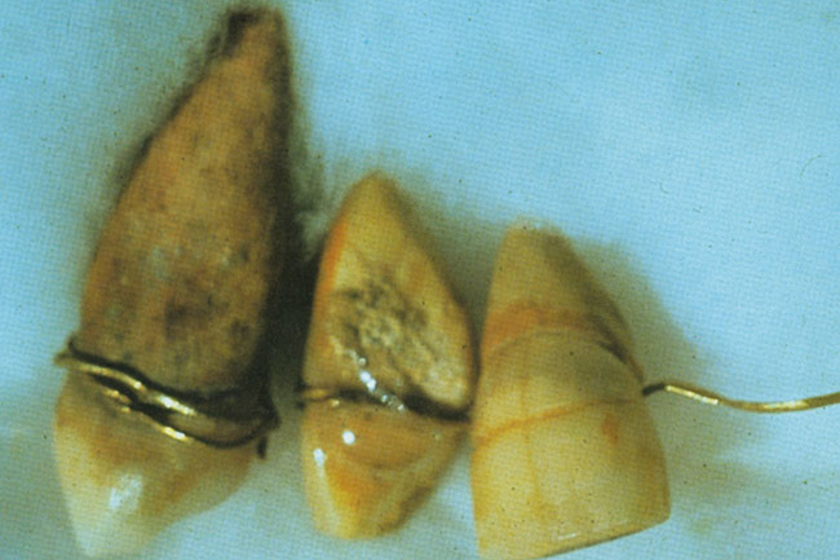 Egyiptomban a régészeti feltárások során találtak időszámításunk előtt 2500-ból származó fogakat, melyet aranydrótokkal tekertek körbe. Feltehetően ez a több mint négyezer éves lelet a bizonyíték arra, hogy már ebben az időszakban használtak fogszabályzót.