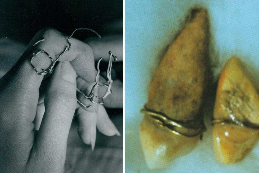 Már több mint 4000 éve feltalálták a fogszabályzót: így változott a történelem során