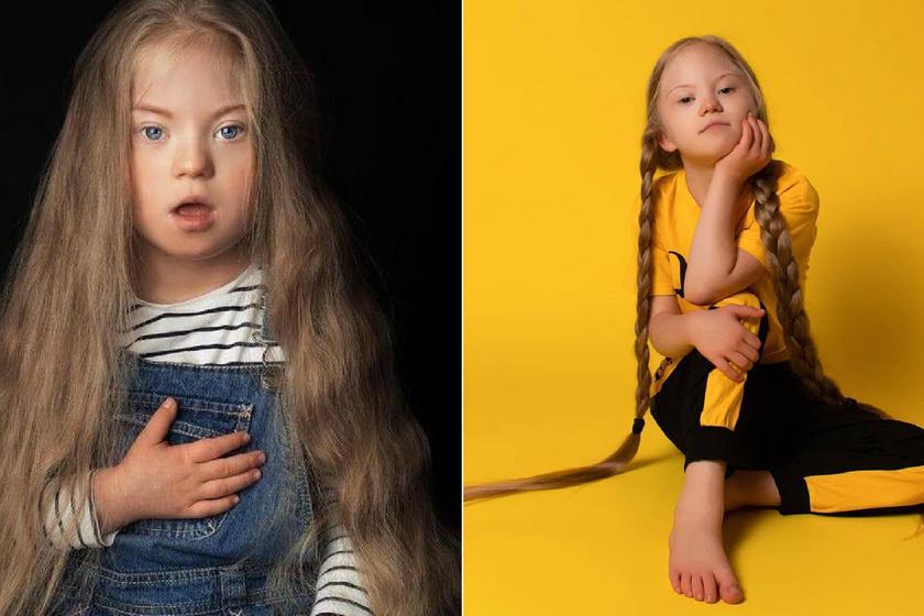 Az orvos lemondott a Down-szindrómás kislányról, Věra már 9 éves, és népszerű modell: sugárzik belőle az életöröm