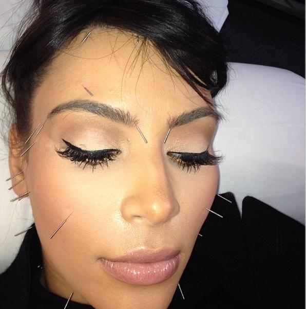 Kardashian akupunktúrával lazít