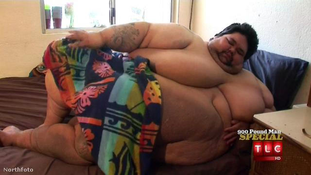 A férfinek le kellett volna adnia 45 kilót, hogy megműthessék.