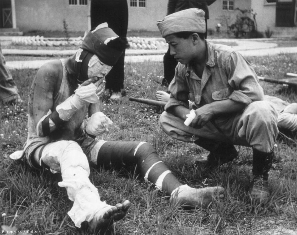 A napalmcsapásban súlyos égési sérüléseket szenvedett katona rágyújt.