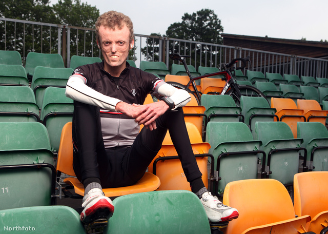 A 24 éves férfi igyekszik teljes életet élni, például versenyszerűen kerékpározik.