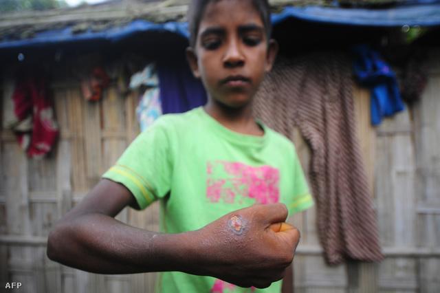 Lépfenével megfertőződött bangladesi kisfiú