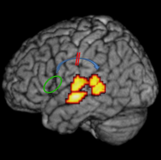dyslexia-brain