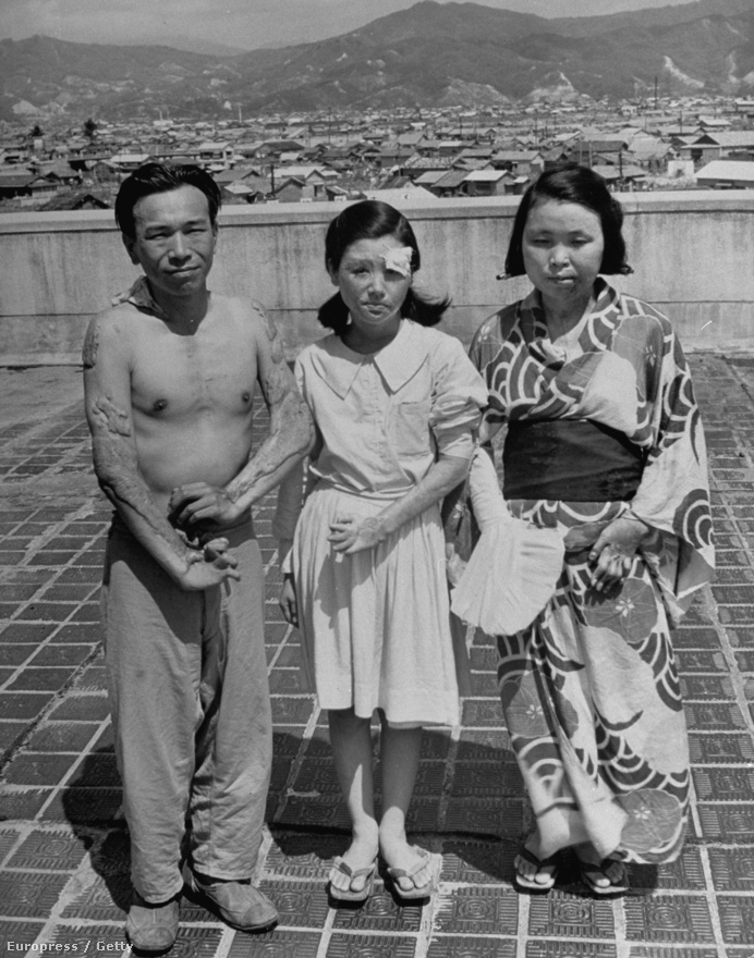 1945. augusztus 6-án dobta le az Enola Gay az atombombát Hirosimára, legalább 80 ezer civil áldozattal járt a művelet. A túlélőkről 1947-ben készült a kép, testük még mindig kelésekkel van tele.