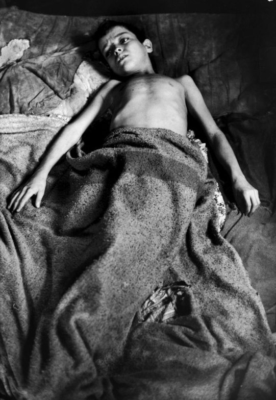 1961-ben, miután publikálták a Flavio életéről szóló képeket, a Life olvasói mintegy 30 ezer dollárt gyűjtöttek össze a család számára. A magazin Denverbe repítette a fiút, hogy asztmáját kezeljék, majd új, rendezett otthonhoz juttatták a testvéreket és a szülőket is.