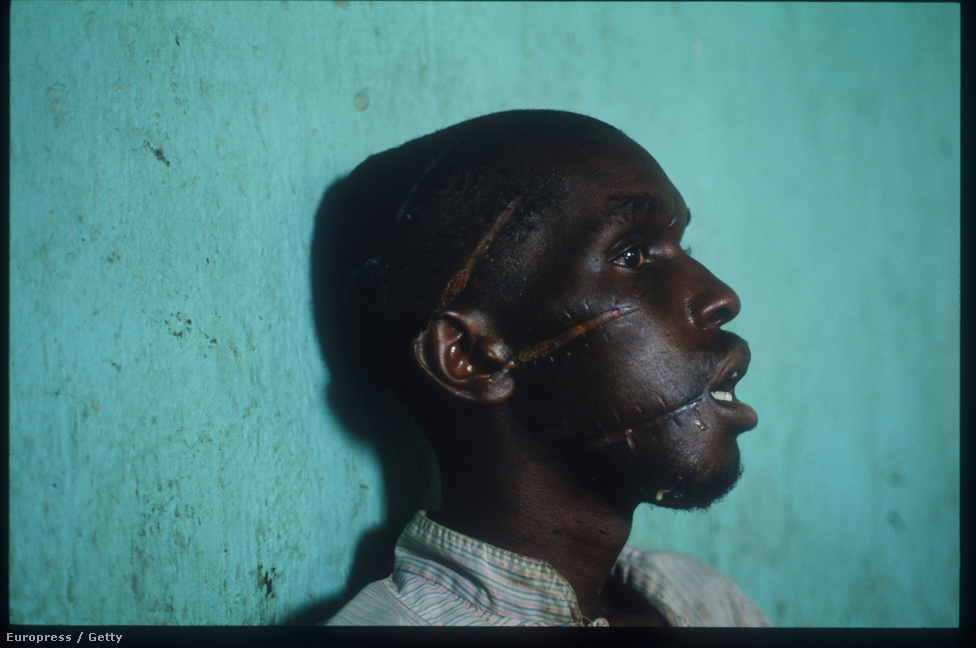 Húsz évvel ezelőtt ezekben a napokban kezdődött el a holokauszt utáni legnagyobb népirtás. 1994 áprilisától Ruandában a többséget alkotó hutuk szélsőségesei 800 ezer embert gyilkoltak le három hónap alatt. A módszeres, előre eltervezett mészárlást a nemzetközi közösség tétlenül nézte végig, a figyelmeztető jelzések ellenére nem avatkoztak be, nem keltek az áldozatok védelmére. A képen egy tuszi férfi mutatja sebhelyes arcát és vágásokkal éktelenített fejét, miután '94 júniusában egymillió társával együtt hazatért az ugandai menekülttáborokból.