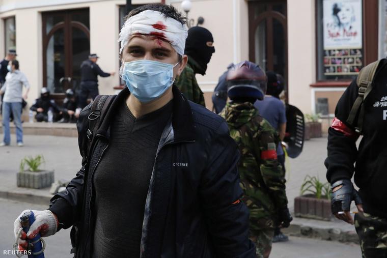 Az összecsapásokban megsérült tüntető.