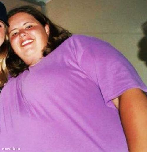 Melanie Staunton nagyon elengedte magát bátyja 2012-es halála után.