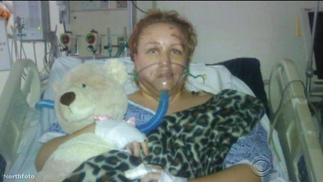 Az orvosok arra készítették fel a hozzátartozókat, hogy Dohme nem fogja túlélni – mégis életben maradt