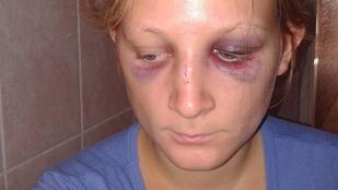 Elfogta a rendőrség a szétvert arccal selfiező lány támadóját