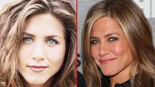Jennifer Aniston nem injekciózik szart az arcába