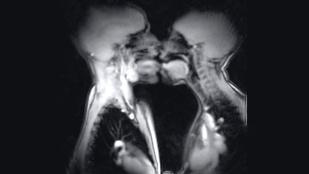 Ilyen a szex MRI-n nézve