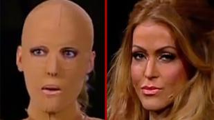 Két év után megmutatta arcát a szétégetett nő