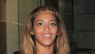 Beyoncé fején katasztrofális bilifrufru jelent meg