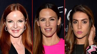 A szétműtött fejű színésznők idősebbek, mint gondolná