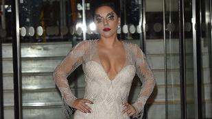 Lady Gaga mellköze itt megtekinthető