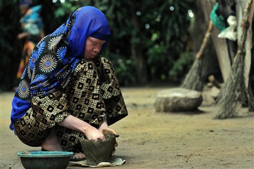 Továbbra is megcsonkítják és gyilkolják a tanzániai albínókat