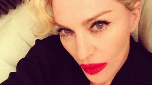 Madonna túlrúzsozta a száját, mint egy szenilis vénasszony