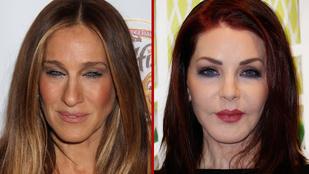 Van, aki túlzásba vitte, van, akiből már ürül a botox