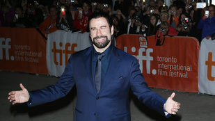 John Travolta igazából kopasz