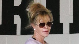 Valami furcsa történt Melanie Griffith orrával