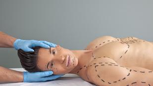 A Vatikán szerint a plasztikai műtét olyan, mint egy burka húsból