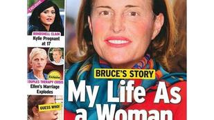 Lehet, hogy Bruce Jenner tényleg nővé operáltatja magát
