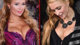 Így járják a világot Paris Hilton új mellei
