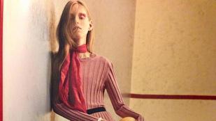 Betegesen sovány modellt szerepelt egy magazinban